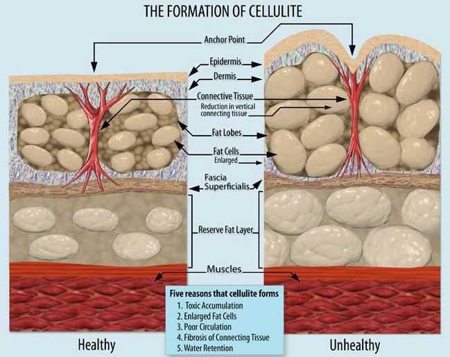 Formazione Cellulite