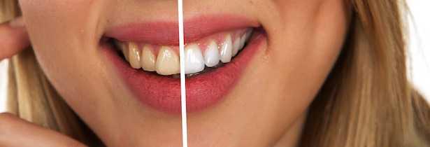 dentifricio fatto in casa per denti bianchi