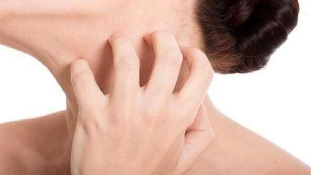 Come curare la psoriasi in modo naturale