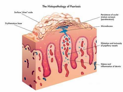 curare la psoriasi