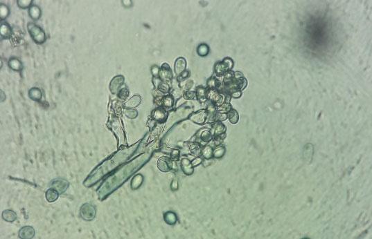 botrite al microscopio