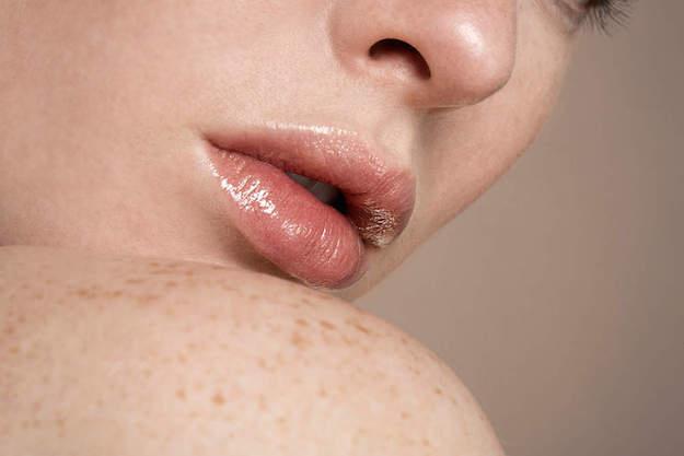 herpes rimedi naturali