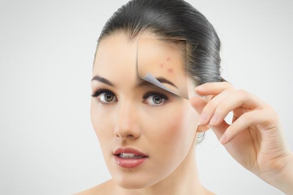 rimedi contro macchie della pelle