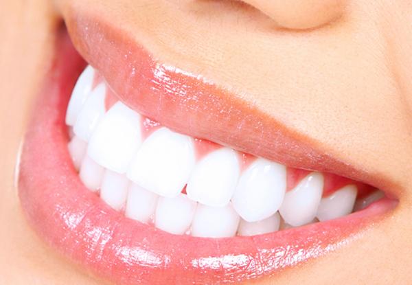 come avere denti bianchi