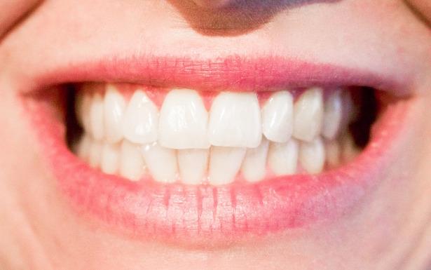 come mantenere denti bianchi