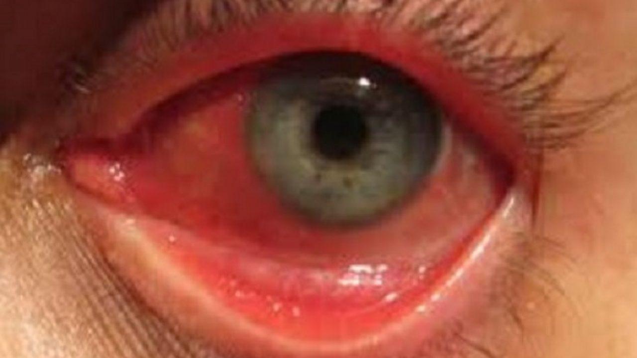Allergia Rimedi Della Nonna bruciore agli occhi: rimedi naturali - idee green