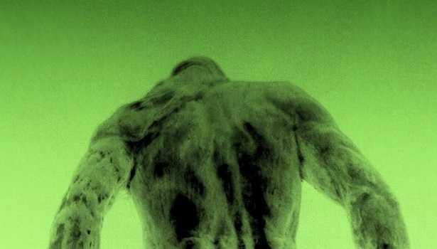 Mal di schiena da postura