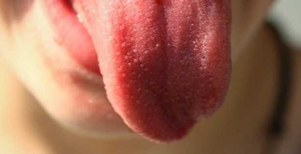 Colore della lingua