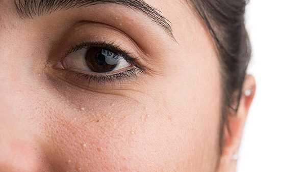 punti bianchi sul viso sulla pelle grani di miglio