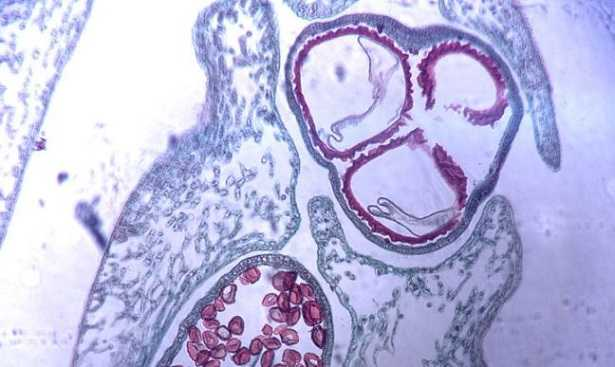 Microspora alghe