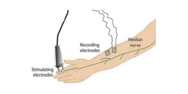 elettromiografia costo