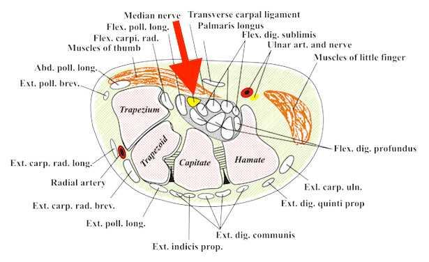 tunnel carpale sintomi