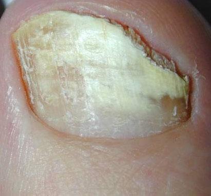 unghia con onicomicosi