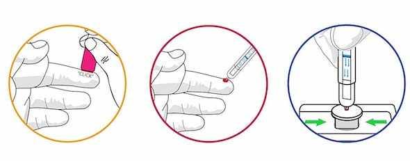 come fare il test hiv