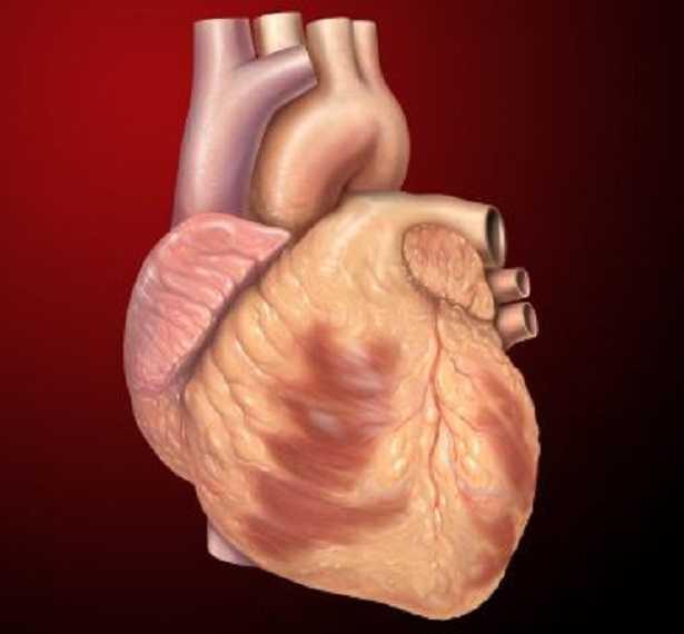 Tosse cardiaca