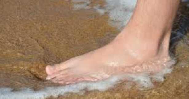 Verruca piede