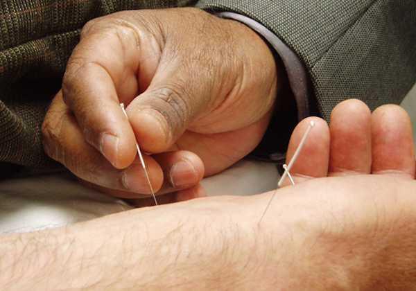 Agopuntura per smettere di fumare