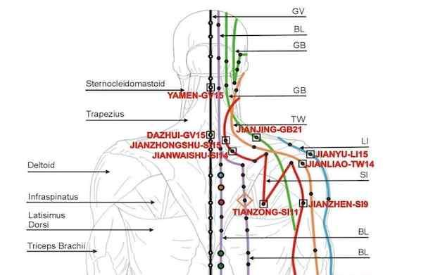agopuntura cervicale