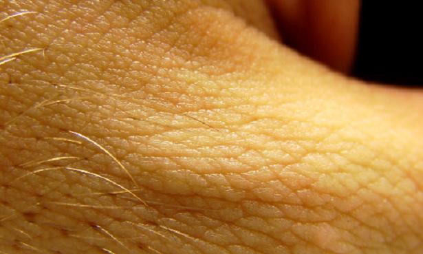Malattie psicosomatiche della pelle