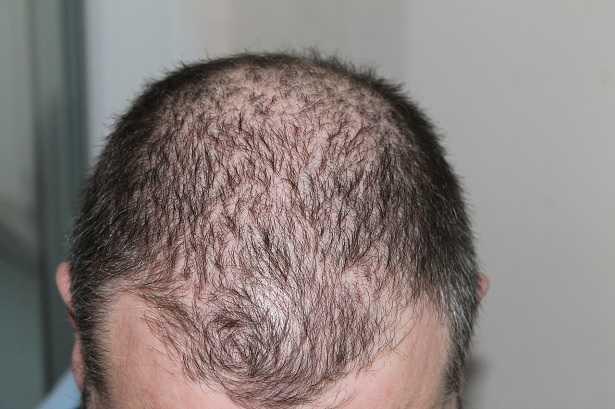 tigna nei capelli