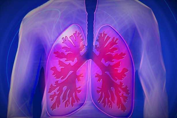 fibrosi-polmonare