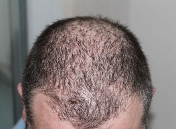 testa con pochi capelli